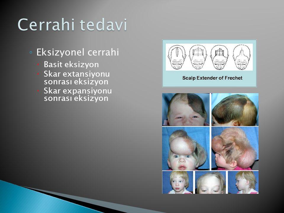 ◦ Eksizyonel cerrahi  Basit eksizyon  Skar extansiyonu sonrası eksizyon  Skar expansiyonu sonrası eksizyon