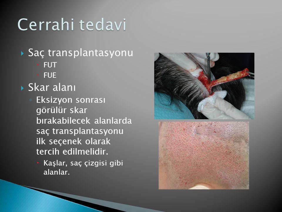  Saç transplantasyonu  FUT  FUE  Skar alanı ◦ Eksizyon sonrası görülür skar bırakabilecek alanlarda saç transplantasyonu ilk seçenek olarak tercih