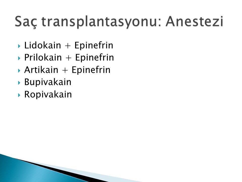  Lidokain + Epinefrin  Prilokain + Epinefrin  Artikain + Epinefrin  Bupivakain  Ropivakain