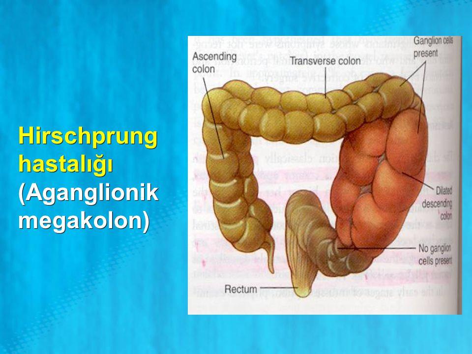 Hirschprung hastalığı (Aganglionik megakolon)