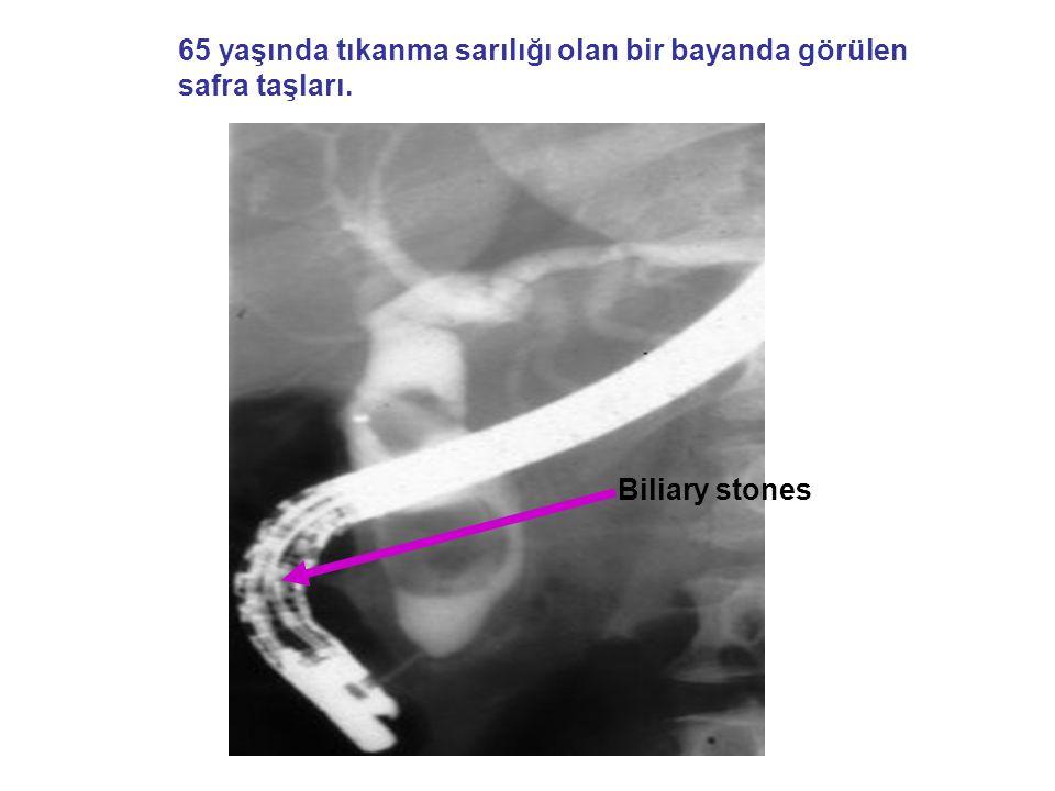 65 yaşında tıkanma sarılığı olan bir bayanda görülen safra taşları. Biliary stones