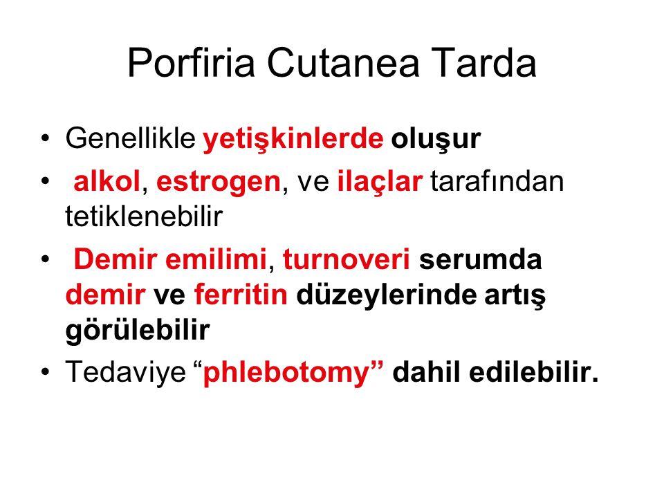 Porfiria Cutanea Tarda Genellikle yetişkinlerde oluşur alkol, estrogen, ve ilaçlar tarafından tetiklenebilir Demir emilimi, turnoveri serumda demir ve