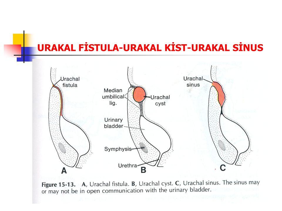 URAKAL FİSTULA-URAKAL KİST-URAKAL SİNUS
