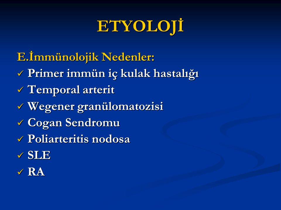 ETYOLOJİ E.İmmünolojik Nedenler: Primer immün iç kulak hastalığı Primer immün iç kulak hastalığı Temporal arterit Temporal arterit Wegener granülomato