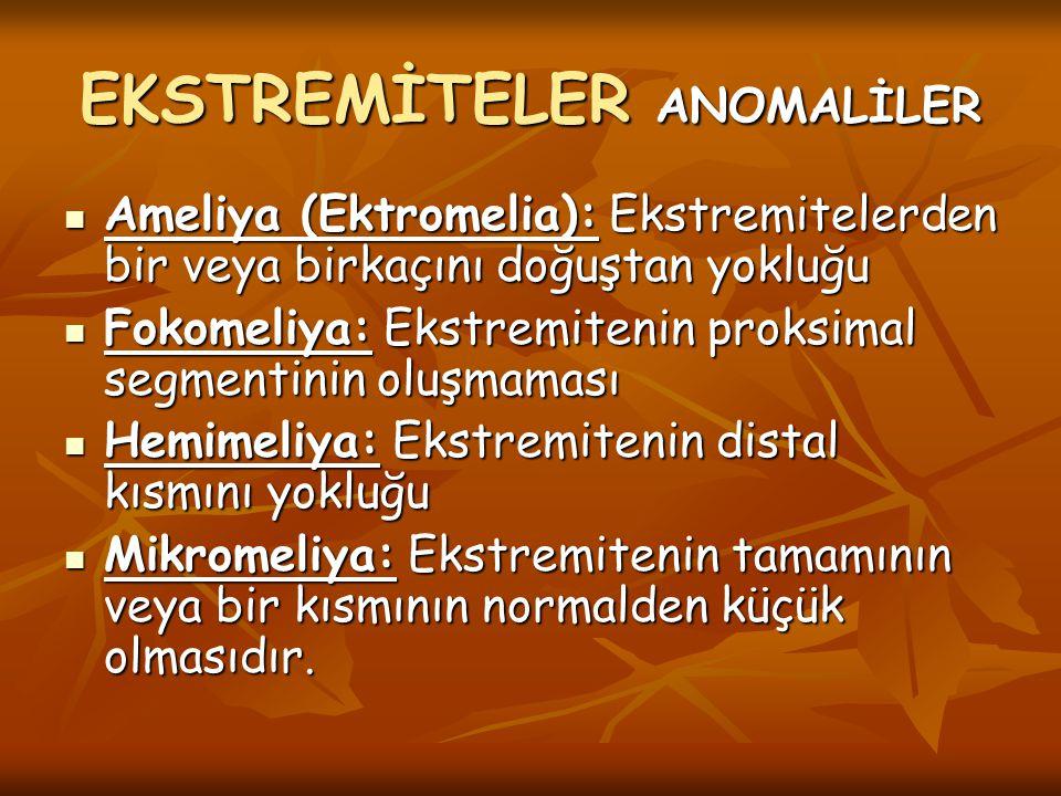 Ameliya (Ektromelia): Ekstremitelerden bir veya birkaçını doğuştan yokluğu Ameliya (Ektromelia): Ekstremitelerden bir veya birkaçını doğuştan yokluğu