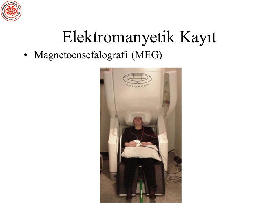 ) Magnetoensefalografi
