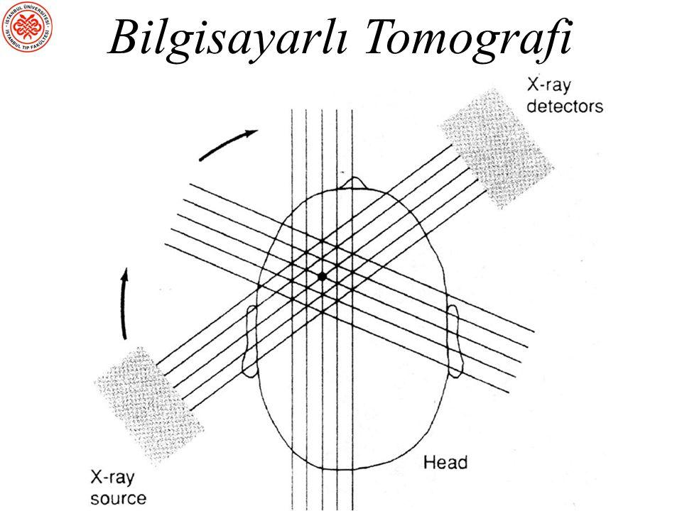 Beynin Yapısal Olarak İncelenmesi sBT (Bilgisayarlı Tomografi): X- ışınlarıyla beynin ince kesitleri alınır sMRG (Manyetik Rezonans Görüntüleme): Beyi
