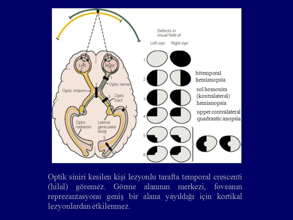 bitemporal hemianopsia sol homonim (kontralateral) hemianopsia upper contralateral quadrantic anopsia Optik siniri kesilen kişi lezyonlu tarafta tempo