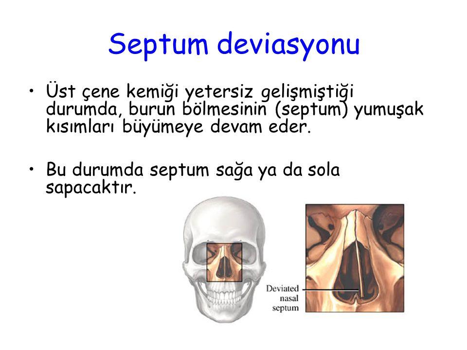 Septum deviasyonu (burun bölmesi sapması) Septum deviasyonu burun boşluklarını daraltır ve ağızdan nefes almaya yol açar.