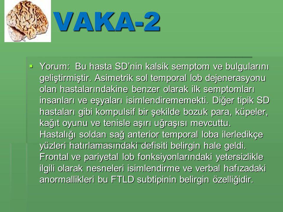 VAKA-2  Yorum: Bu hasta SD'nin kalsik semptom ve bulgularını geliştirmiştir.