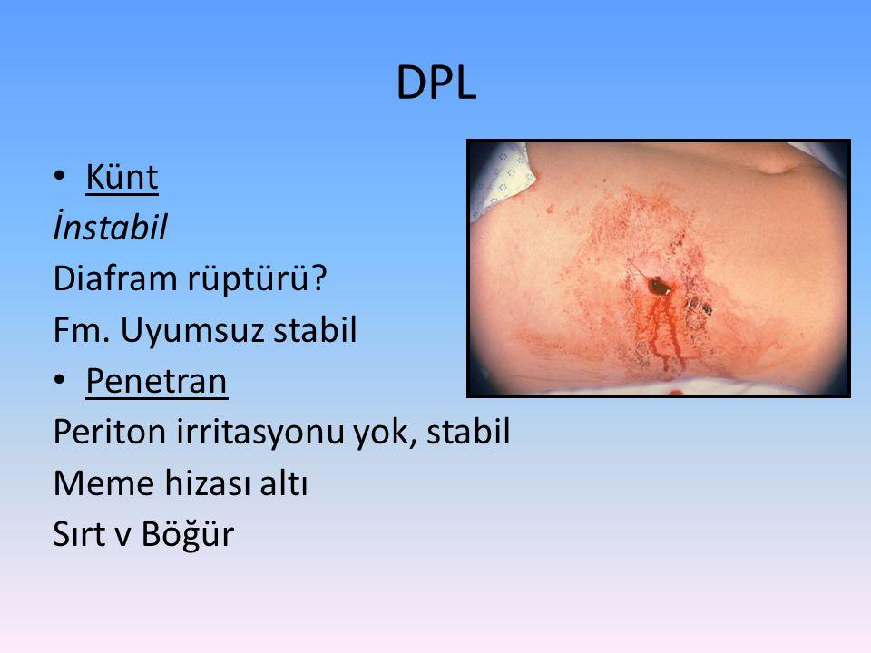 Künt İnstabil Diafram rüptürü? Fm. Uyumsuz stabil Penetran Periton irritasyonu yok, stabil Meme hizası altı Sırt v Böğür