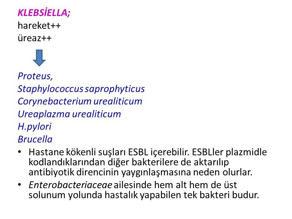 EIEC; Kalın barsak tipi kanlı mukuslu dizanteriform ishal Sereny testi+++(bu testte bakteri tavşanın konjuktivasına bulaştırılır. Konjuktivit gelişirs