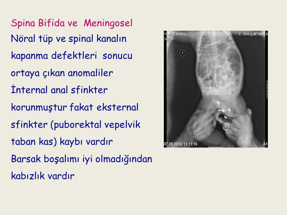 Spina Bifida ve Meningosel Nöral tüp ve spinal kanalın kapanma defektleri sonucu ortaya çıkan anomaliler İnternal anal sfinkter korunmuştur fakat eksternal sfinkter (puborektal vepelvik taban kas) kaybı vardır Barsak boşalımı iyi olmadığından kabızlık vardır