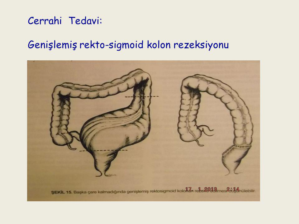Cerrahi Tedavi: Genişlemiş rekto-sigmoid kolon rezeksiyonu
