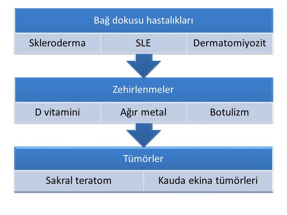 Tümörler Sakral teratomKauda ekina tümörleri Zehirlenmeler D vitaminiAğır metalBotulizm Bağ dokusu hastalıkları SklerodermaSLEDermatomiyozit,