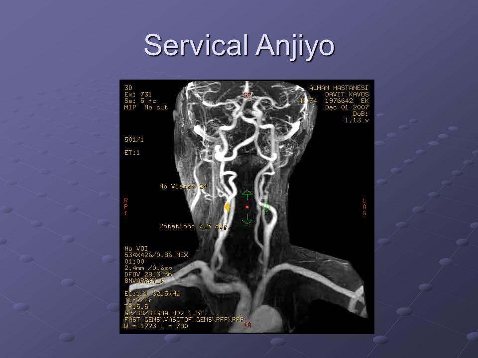 1-Sağ Klaviküler Arter 2-Sağ Vertebral Arter 3-Sağ İnternal Karotid Arter 4-Sol İnternal Karotid Arter 5-Sol External Karotoid Arter 6-Sol ortak Karotoid arter 7-Sol Klaviküler Arter 8-Aorta