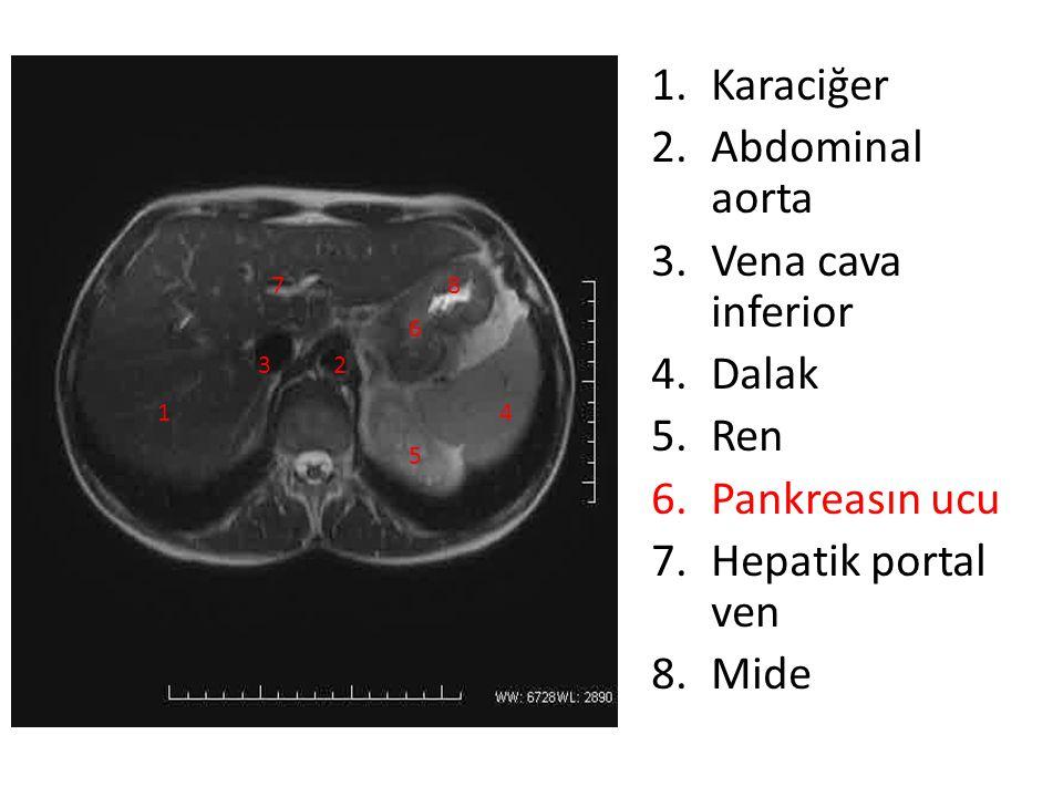 1.Karaciğer 2.Abdominal aorta 3.Vena cava inferior 4.Dalak 5.Ren 6.Pankreasın ucu 7.Hepatik portal ven 8.Mide 1 23 4 5 6 78