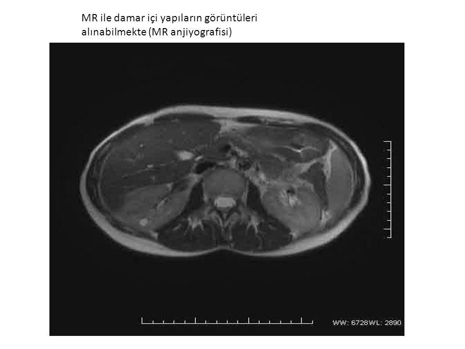 MR ile damar içi yapıların görüntüleri alınabilmekte (MR anjiyografisi)