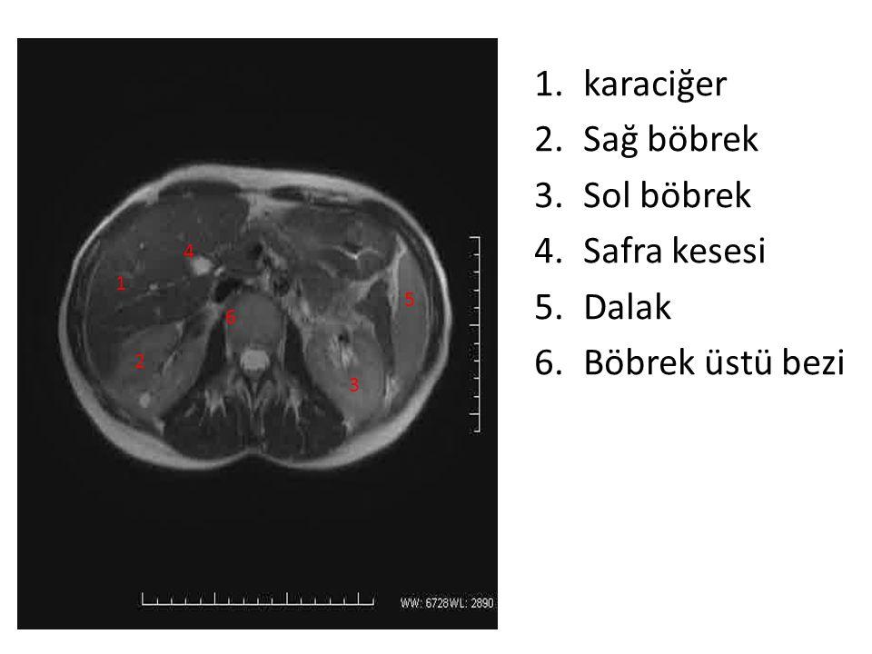 1.karaciğer 2.Sağ böbrek 3.Sol böbrek 4.Safra kesesi 5.Dalak 6.Böbrek üstü bezi 1 2 3 4 5 6