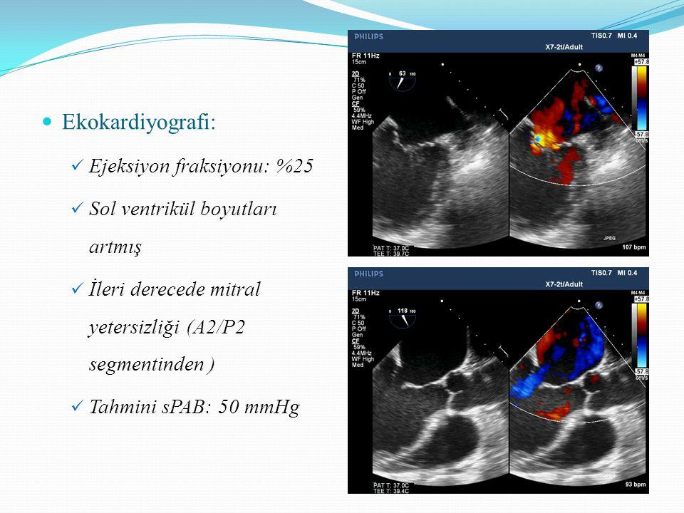 Ekokardiyografi: Ejeksiyon fraksiyonu: %25 Sol ventrikül boyutları artmış İleri derecede mitral yetersizliği (A2/P2 segmentinden ) Tahmini sPAB: 50 mmHg
