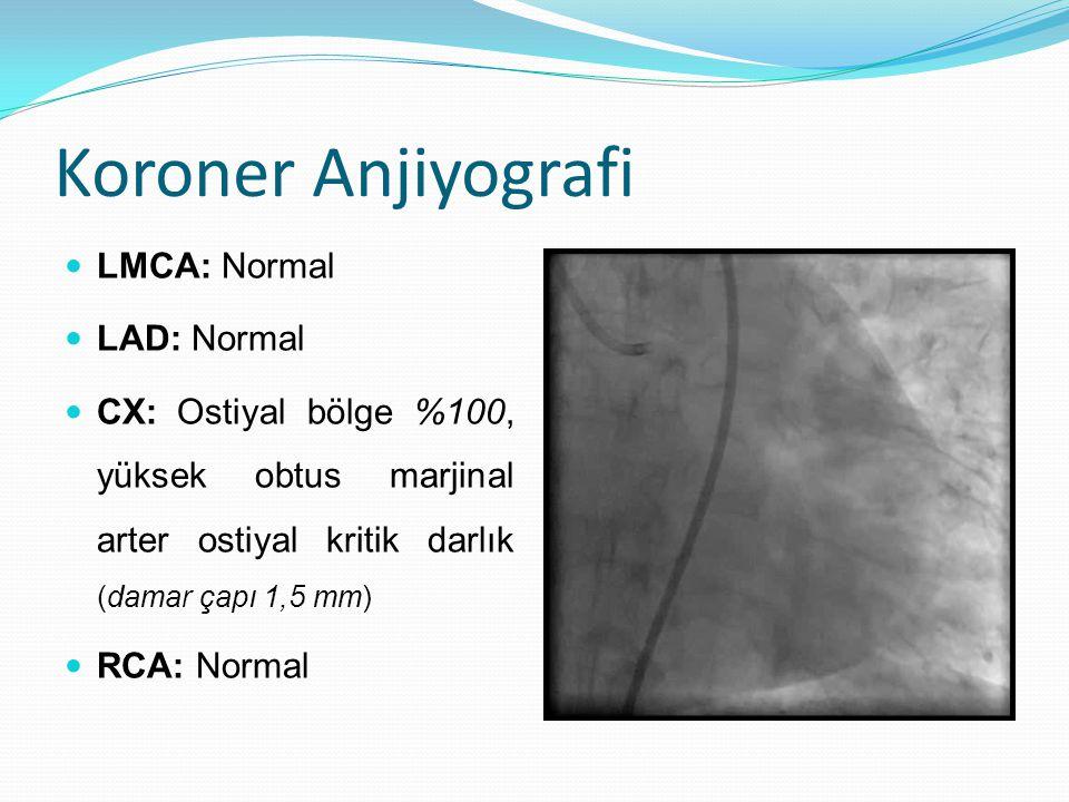 Koroner Anjiyografi LMCA: Normal LAD: Normal CX: Ostiyal bölge %100, yüksek obtus marjinal arter ostiyal kritik darlık (damar çapı 1,5 mm) RCA: Normal