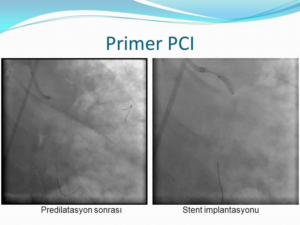 Primer PCI Predilatasyon sonrası Stent implantasyonu