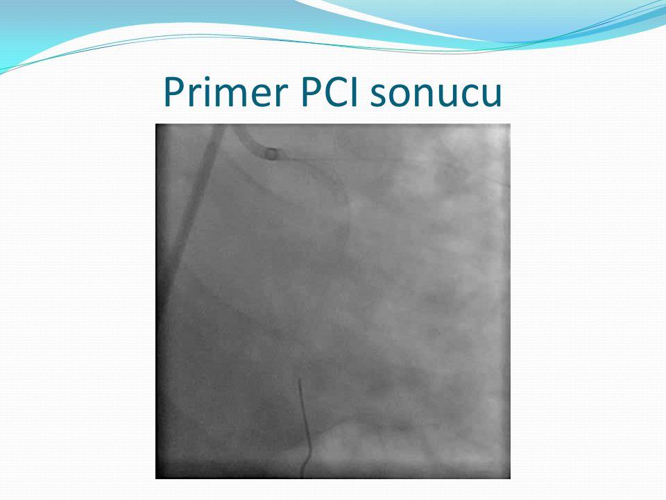 Primer PCI sonucu