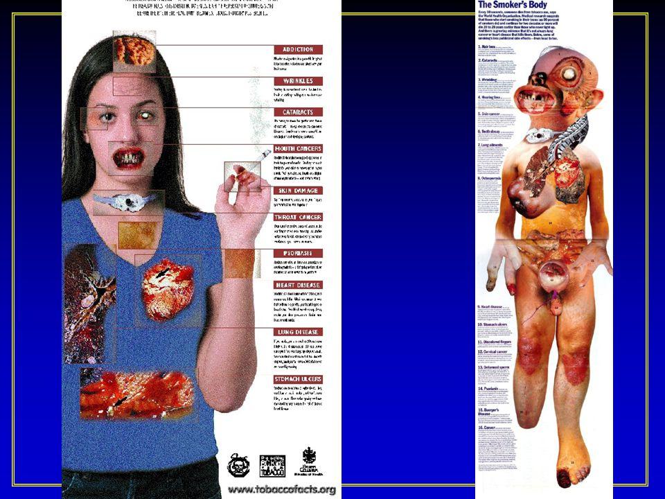 Sigaranın Sağlık Üzerine Zararlı Etkileri Sigara akciğer kanseri, kronik obstrüktif akciğer hastalığı (KOAH) ve periferik aterosklerozun (damar hastalığı) ana nedenidir.