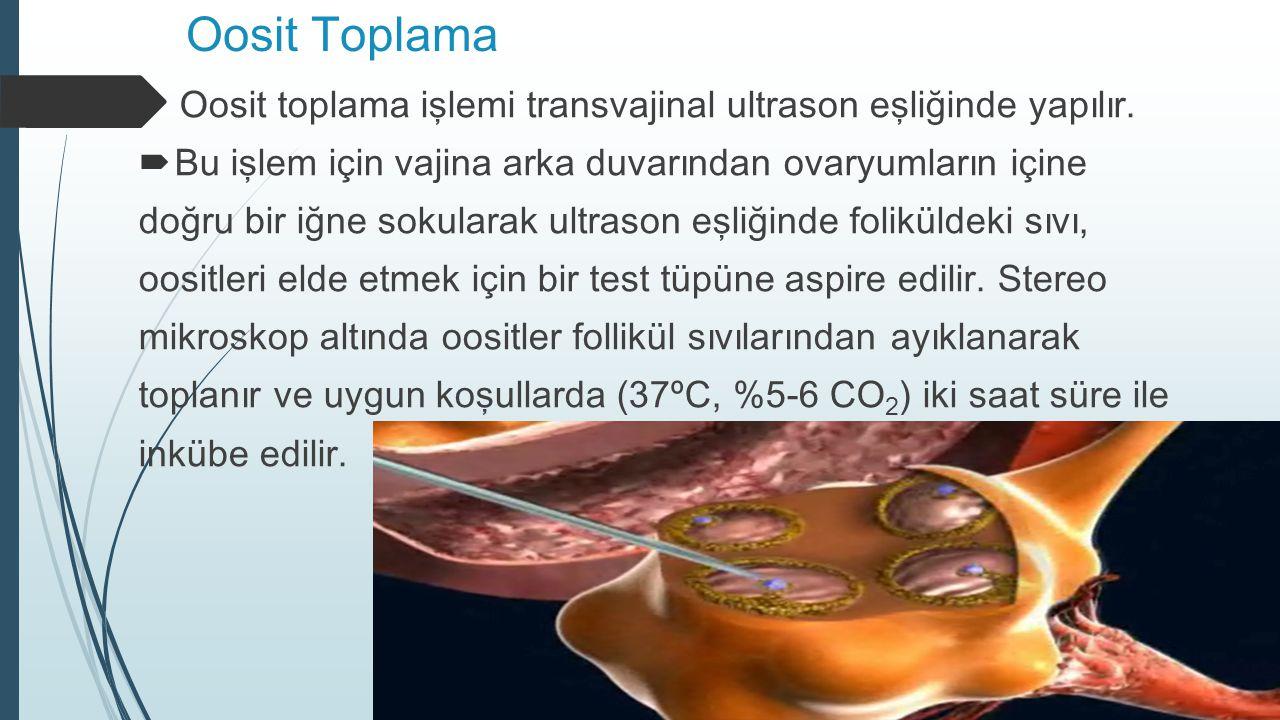 Oosit Toplama Oosit toplama işlemi transvajinal ultrason eşliğinde yapılır.  Bu işlem için vajina arka duvarından ovaryumların içine doğru bir iğne s