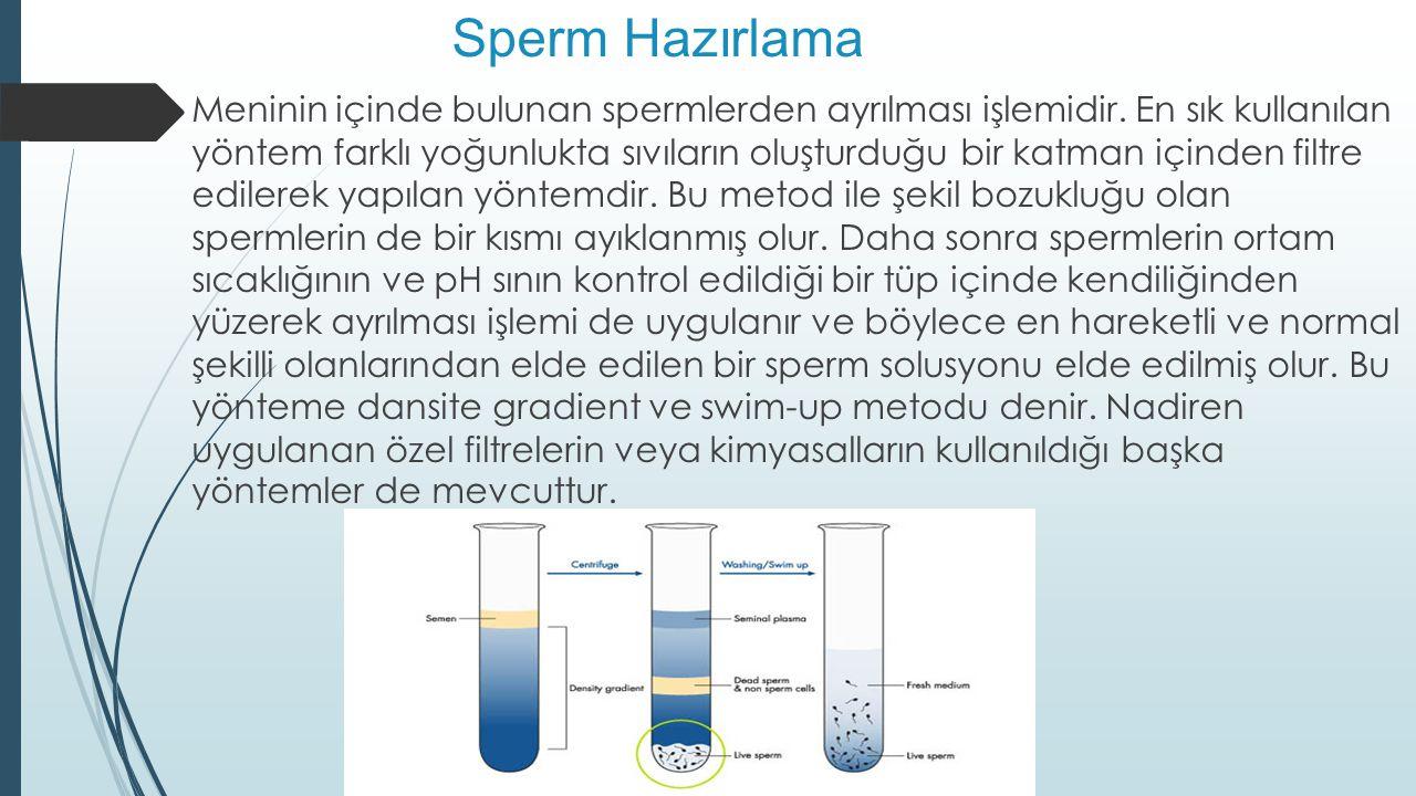 Sperm Hazırlama  Meninin içinde bulunan spermlerden ayrılması işlemidir. En sık kullanılan yöntem farklı yoğunlukta sıvıların oluşturduğu bir katman