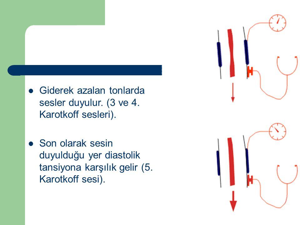 Giderek azalan tonlarda sesler duyulur.(3 ve 4. Karotkoff sesleri).