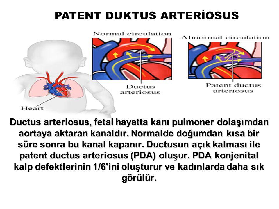 PATENT DUKTUS ARTERİOSUS Ductus arteriosus, fetal hayatta kanı pulmoner dolaşımdan aortaya aktaran kanaldır. Normalde doğumdan kısa bir süre sonra bu