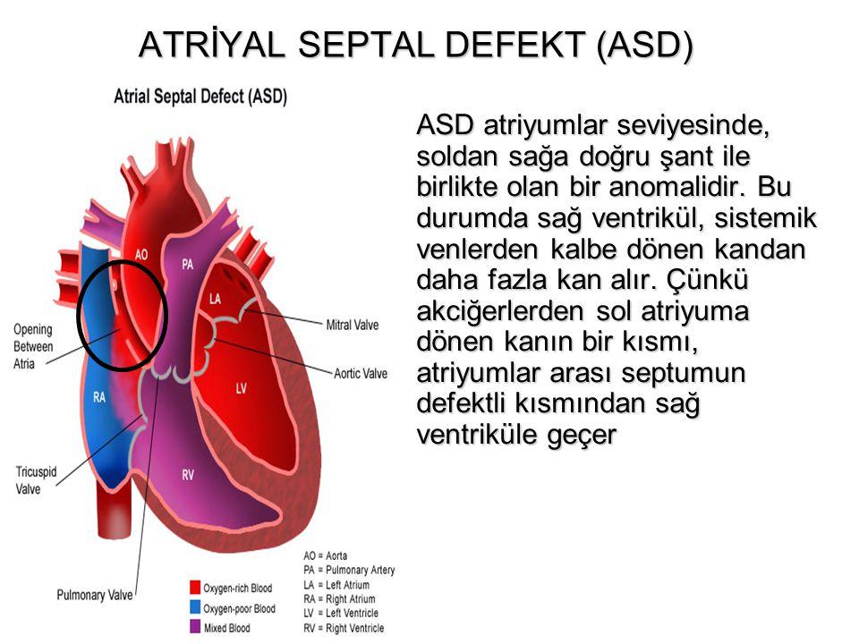 ATRİYAL SEPTAL DEFEKT (ASD) ASD atriyumlar seviyesinde, soldan sağa doğru şant ile birlikte olan bir anomalidir. Bu durumda sağ ventrikül, sistemik ve