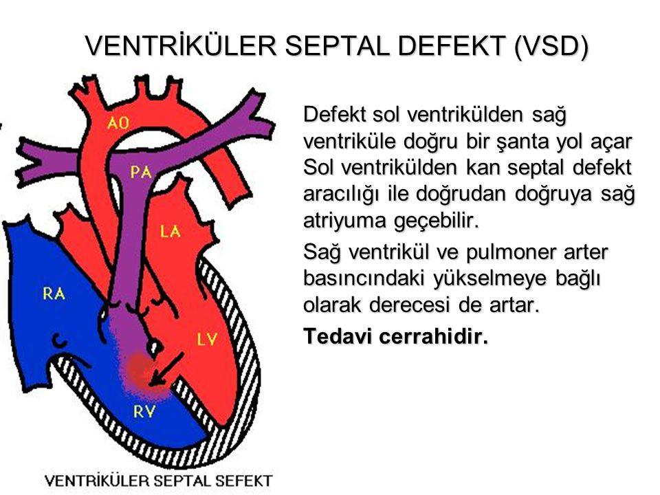 VENTRİKÜLER SEPTAL DEFEKT (VSD) Defekt sol ventrikülden sağ ventriküle doğru bir şanta yol açar Sol ventrikülden kan septal defekt aracılığı ile doğru