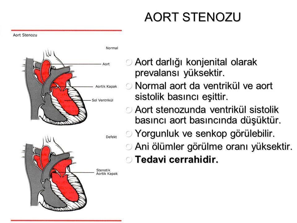 AORT STENOZU Aort darlığı konjenital olarak prevalansı yüksektir. Normal aort da ventrikül ve aort sistolik basıncı eşittir. Aort stenozunda ventrikül