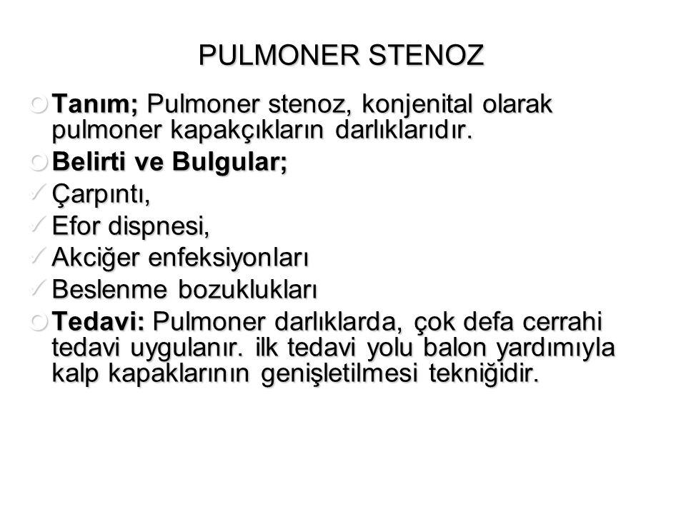 PULMONER STENOZ Tanım; Pulmoner stenoz, konjenital olarak pulmoner kapakçıkların darlıklarıdır. Belirti ve Bulgular; Çarpıntı, Çarpıntı, Efor dispnesi