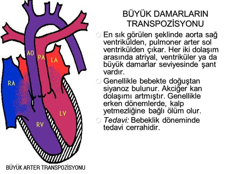 BÜYÜK DAMARLARIN TRANSPOZİSYONU En sık görülen şeklinde aorta sağ ventrikülden, pulmoner arter sol ventrikülden çıkar. Her iki dolaşım arasında atriya