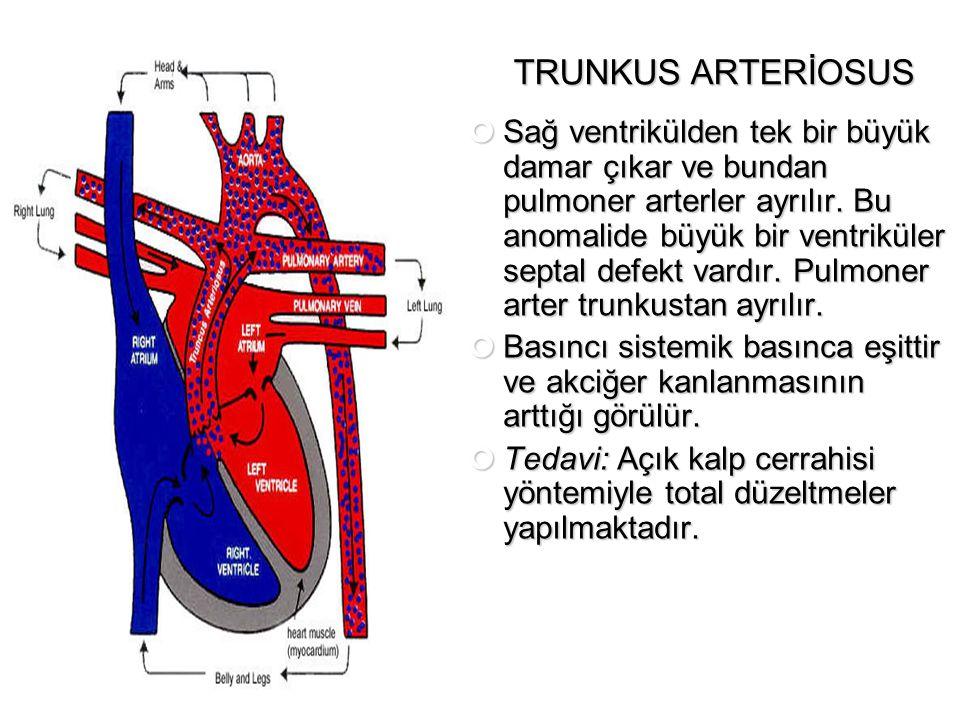TRUNKUS ARTERİOSUS Sağ ventrikülden tek bir büyük damar çıkar ve bundan pulmoner arterler ayrılır. Bu anomalide büyük bir ventriküler septal defekt va