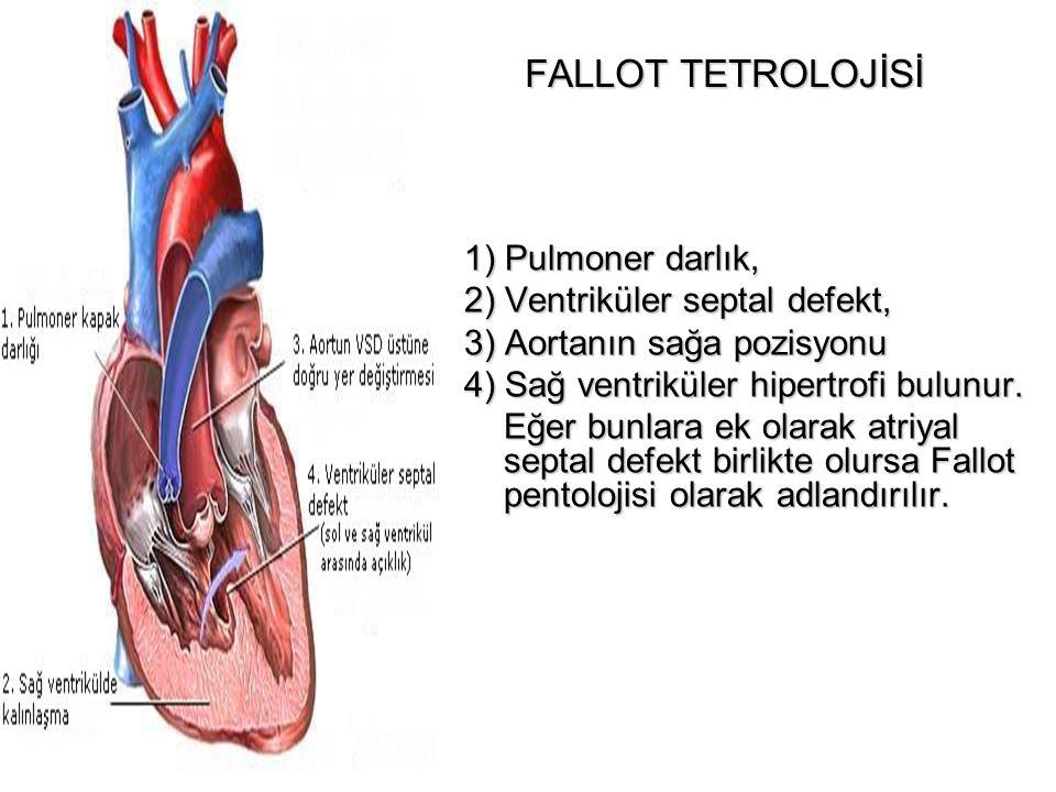 FALLOT TETROLOJİSİ 1) Pulmoner darlık, 2) Ventriküler septal defekt, 3) Aortanın sağa pozisyonu 4) Sağ ventriküler hipertrofi bulunur. Eğer bunlara ek