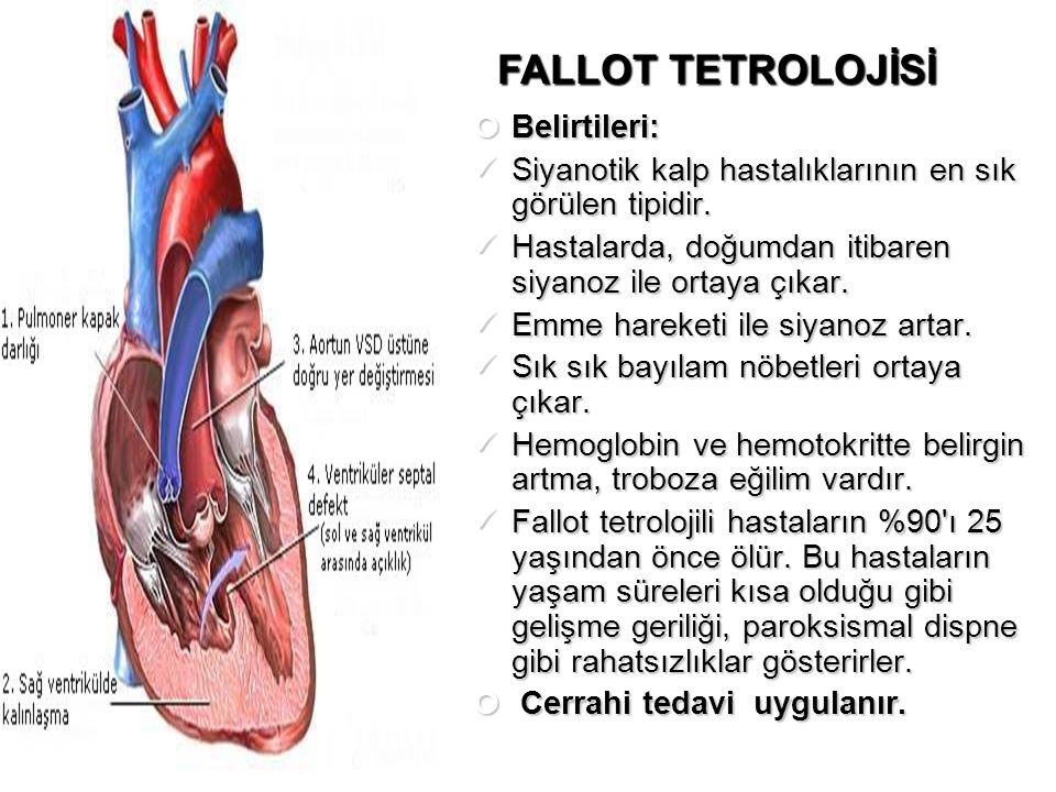 Belirtileri: Siyanotik kalp hastalıklarının en sık görülen tipidir. Siyanotik kalp hastalıklarının en sık görülen tipidir. Hastalarda, doğumdan itibar