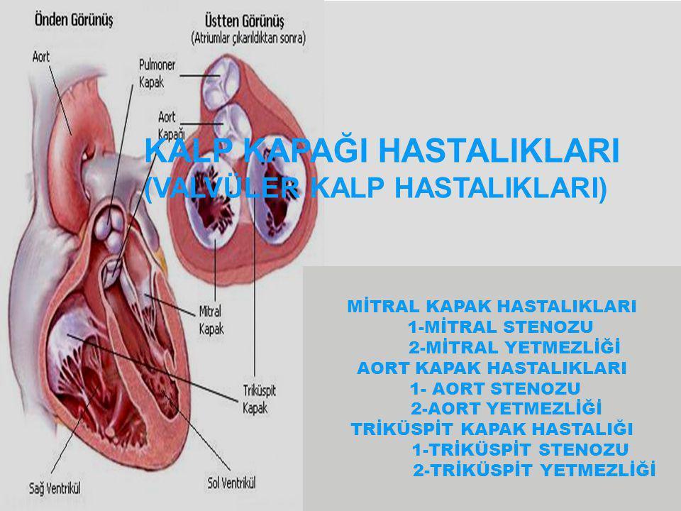 TRİKÜSPİT STENOZU BELİRTİ VE BULGULAR  Düşük out-put nedeniyle erken yorulma  Kilo kaybı  Hipotansiyon  Sağ kalp yetmezliği semptomları Hepatomegali Hepatomegali Jugular ven dolgunluğu Jugular ven dolgunluğu Siroz ve sarılık Siroz ve sarılık VALVÜLER KALP HASTALIKLARI