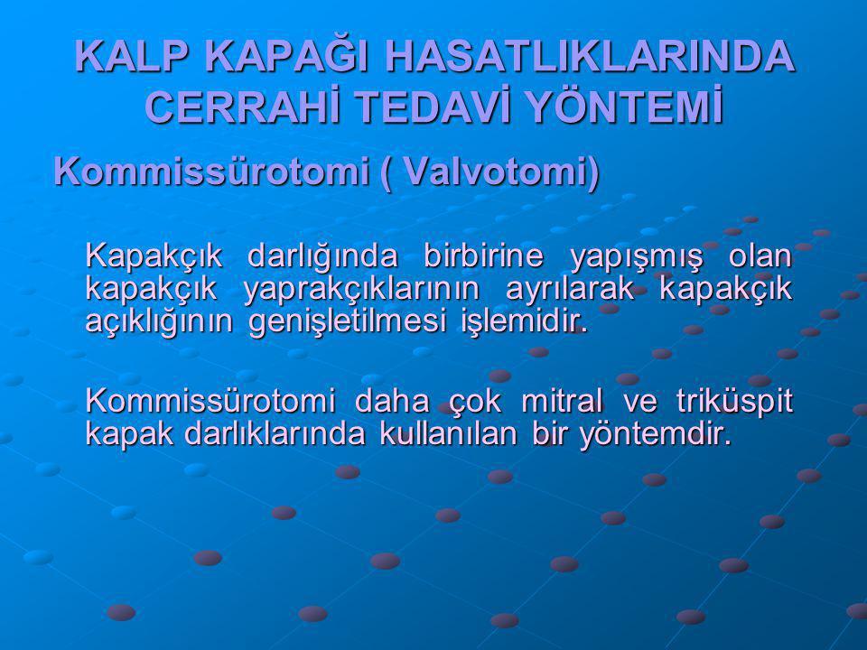 KALP KAPAĞI HASATLIKLARINDA CERRAHİ TEDAVİ YÖNTEMİ Kommissürotomi ( Valvotomi) Kapakçık darlığında birbirine yapışmış olan kapakçık yaprakçıklarının a