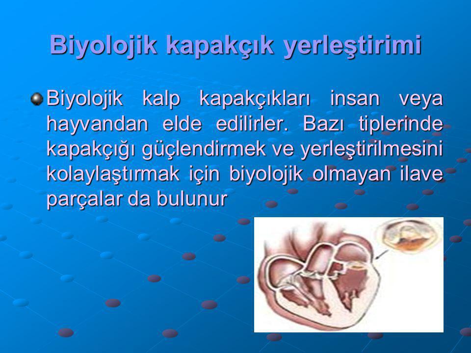 Biyolojik kapakçık yerleştirimi Biyolojik kalp kapakçıkları insan veya hayvandan elde edilirler. Bazı tiplerinde kapakçığı güçlendirmek ve yerleştiril