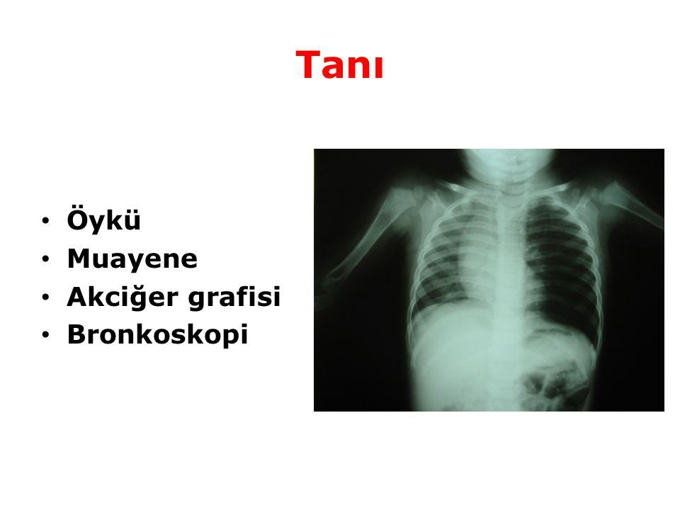 Tanı Öykü Muayene Akciğer grafisi Bronkoskopi