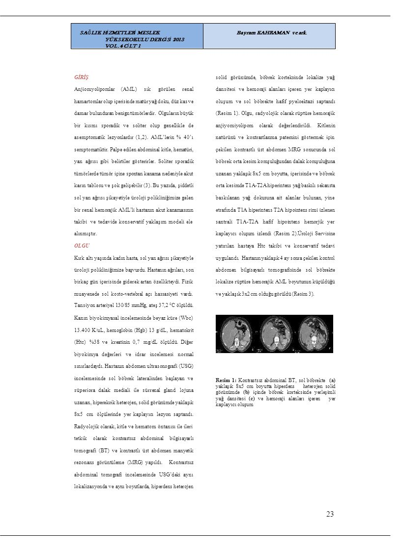 GİRİŞ solid görünümde, böbrek korteksinde lokalize yağ Anjiomyolipomlar(AML)(AML)sıksıkgörülenrenaldansitesi ve hemoraji alanları içeren yer kaplayıcı