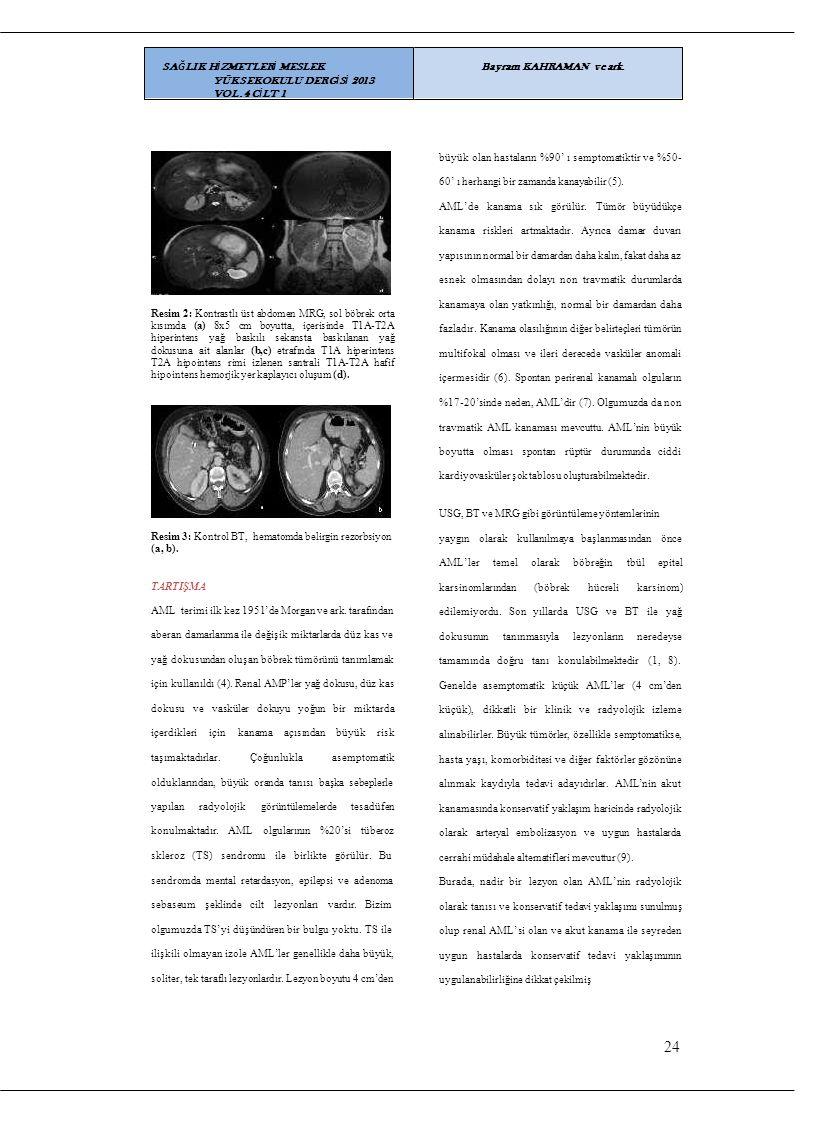 büyük olan hastaların %90' ı semptomatiktir ve %50- 60' ı herhangi bir zamanda kanayabilir (5). AML'de kanama sık görülür. Tümör büyüdükçe kanama risk