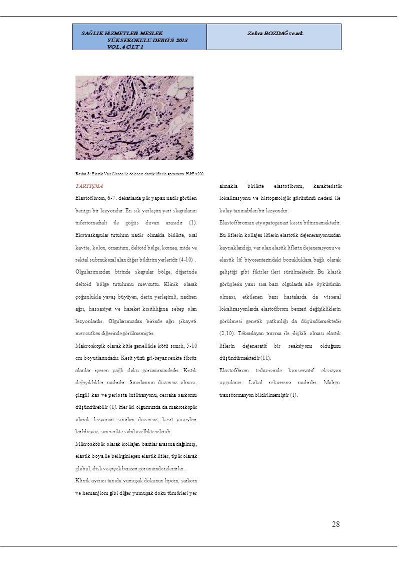 Resim 3: Elastik Van Gieson ile dejenere elastik liflerin görünümü. H&E x200. TARTIŞMA almaklabirlikteelastofibrom,karakteristik Elastofibrom, 6-7. de