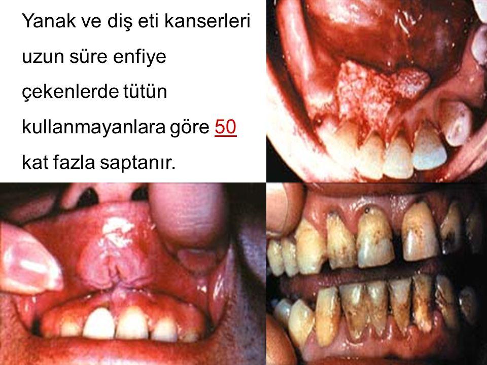 Yanak ve diş eti kanserleri uzun süre enfiye çekenlerde tütün kullanmayanlara göre 50 kat fazla saptanır.