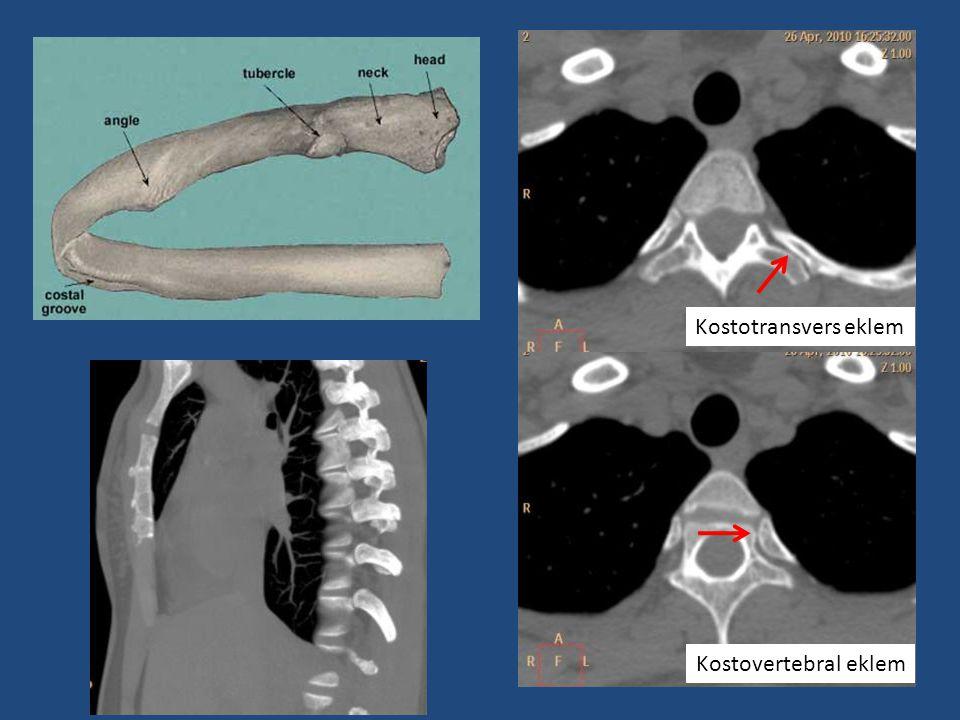 Kostotransvers eklem Kostovertebral eklem