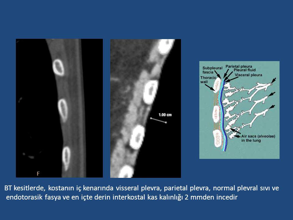 BT kesitlerde, kostanın iç kenarında visseral plevra, parietal plevra, normal plevral sıvı ve endotorasik fasya ve en içte derin interkostal kas kalın